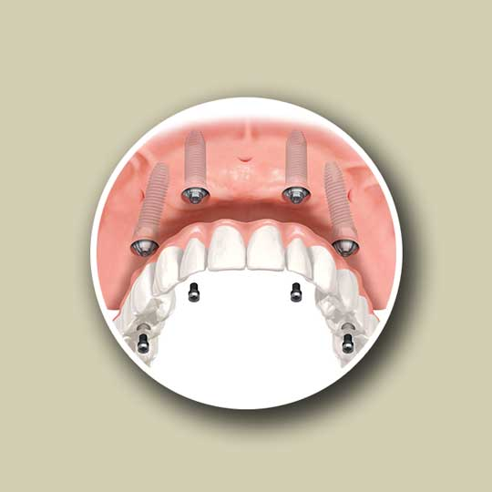 All on four dental implant procedure by Wisconsin Dental Solutions